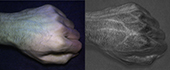 Comparison of fist: image taken with a normal camera (left), HyperCam images (right)